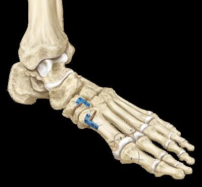 how to make a metatarsal bone fast